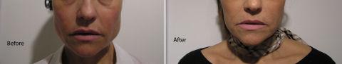 botox-treatment-tmd-bruxism-4801