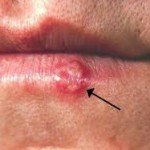image of cold sore